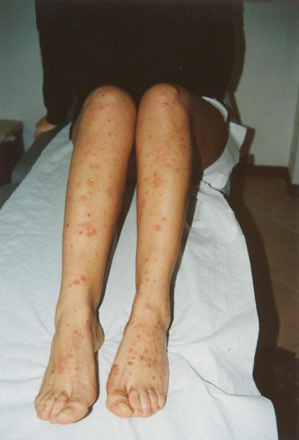psoriasi-guttata-gambe-donna