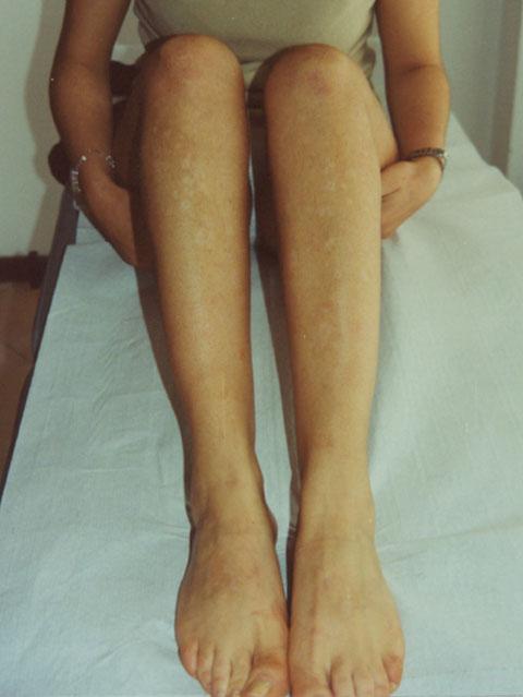 psoriasi-guttata-gambe-donna-dopo