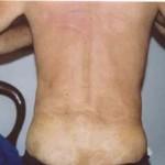 psoriasi-schiena-glutei-dopo
