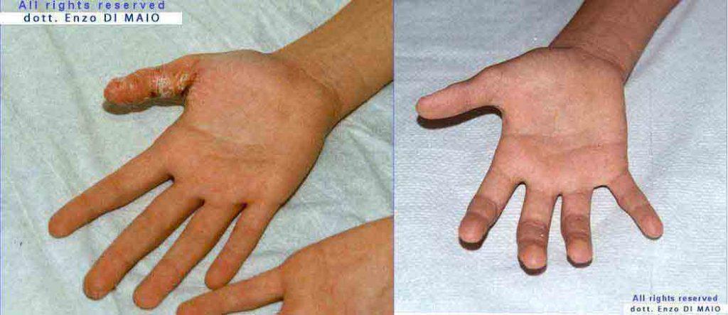 Controllo di dermatite di atopic