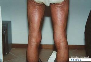 psoriasi-gambe-prima