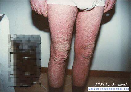 psoriasi-diffusa-gambe-uomo