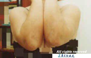 psoriasi-gomiti-donna-dopo