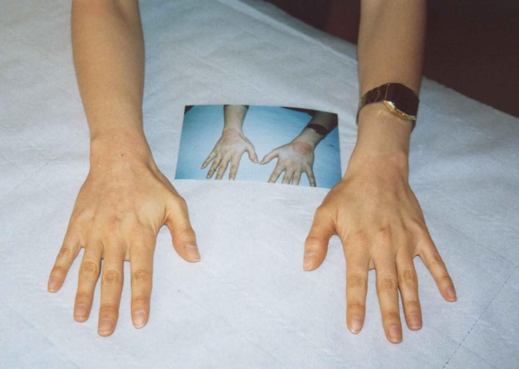 psoriasi-eczema-mani-dopo