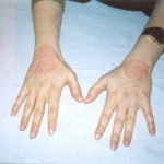 psoriasi-eczema-mani-prima