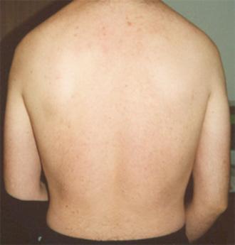 psoriasi-a-placche-schiena-dopo
