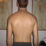 psoriasi-chiazze-bianche-schiena-dopo