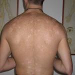 psoriasi-chiazze-bianche-schiena-prima