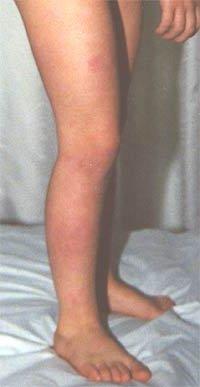 Dermatite di atopic e klebsiyell