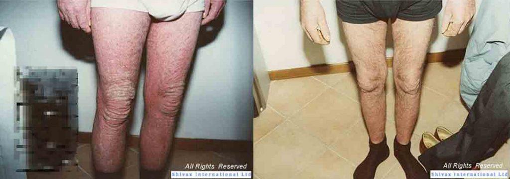 psoriasi-diffusa-gambe