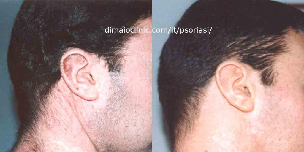 psoriasi-orecchio-destro