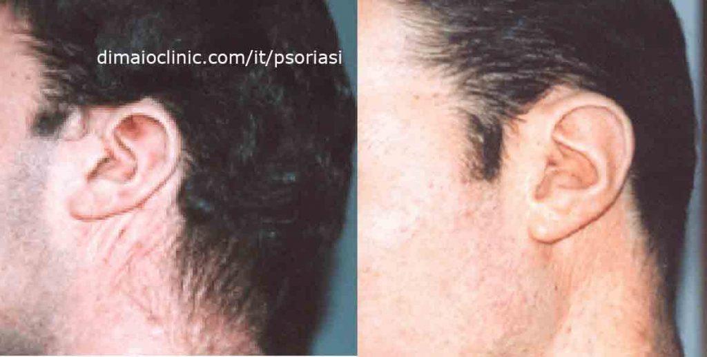 psoriasi-orecchio-sinistro