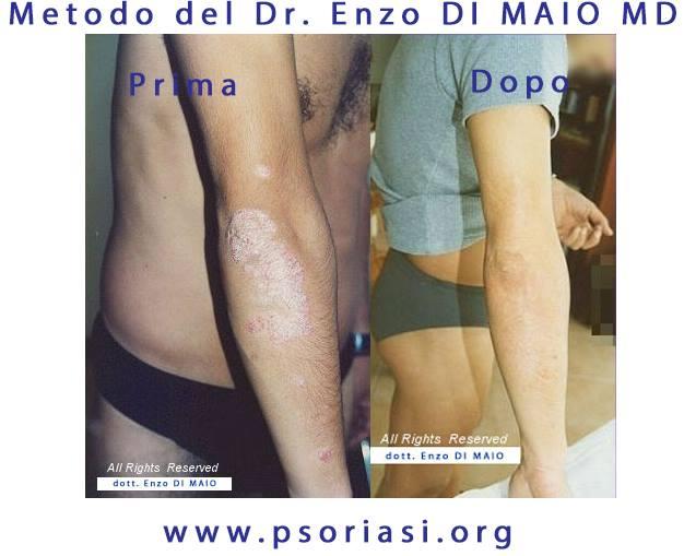 Elbow-psoriasis