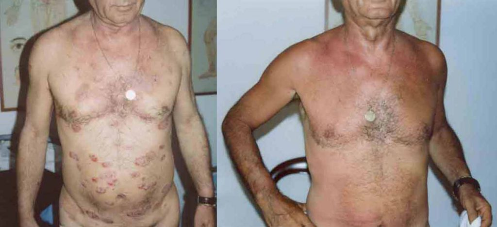 abdomen plaque psoriasis