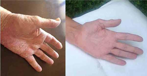 Psoriasi palmare mani