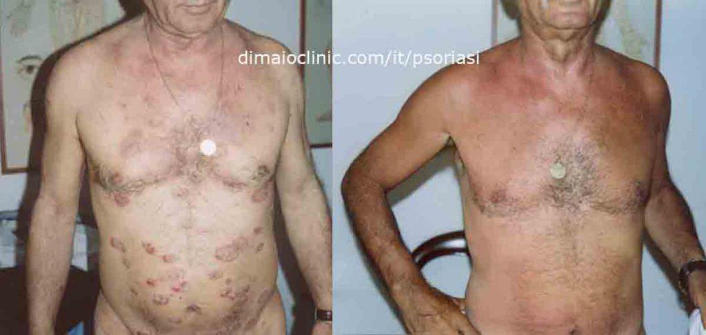 foto psoriasi addome cura