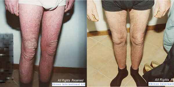 foto psoriasi diffusa gambe ginocchi cura