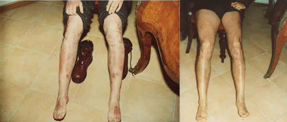 foto psoriasi ginocchi piede cura