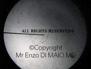 Ife Candida Albicans Immagine Diritti Riservati al Dr Enzo DI MAIO MD